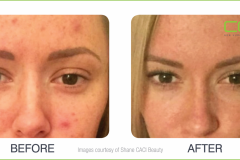 CACI Blemish Treatment